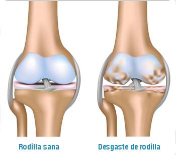 desgaste de rodilla