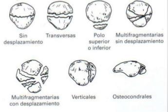 clasificacion de fractura de rotula