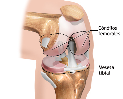 condilos femorales