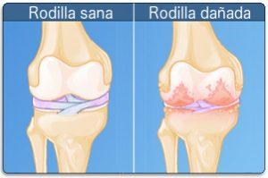 desgaste de cartilago en la rodilla