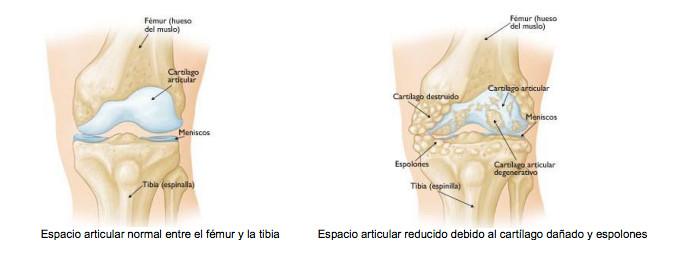 consecuencias de osteoartritis de rodilla