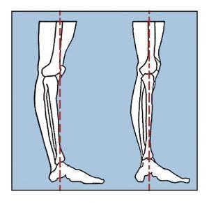 hiperextension de rodilla