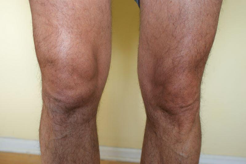 liquido en la rodilla