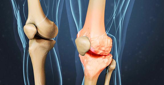 osteoartritis de rodilla