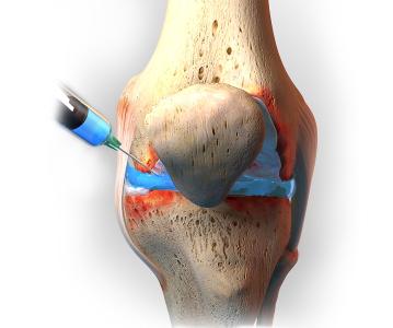 viscosuplementacion para osteoartritis de rodilla