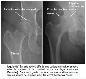 protesis de cadera - evaluacion
