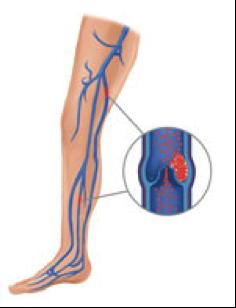 protesis de cadera - complicaciones