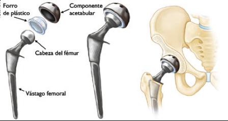 protesis de cadera - que es