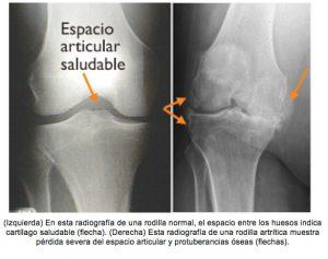 protesis de rodilla - evaluacion