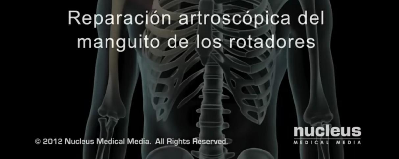 reparacion artroscopica de manguito de los rotadores