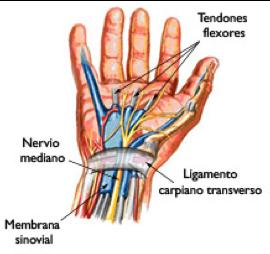 sindrome de tunel carpiano - causas