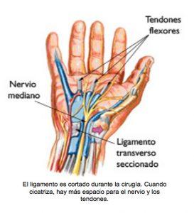 sindrome de tunel carpiano - cirugia