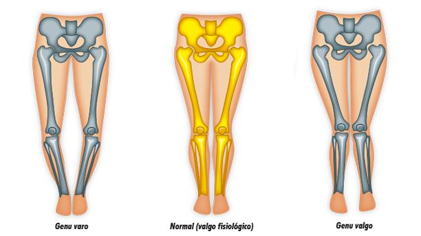 osteotomia de rodilla