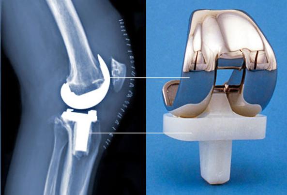 cirugia de protesis de rodilla