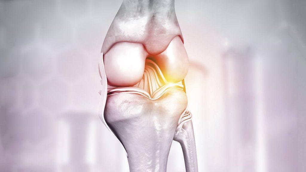 Artrosis en monterrey