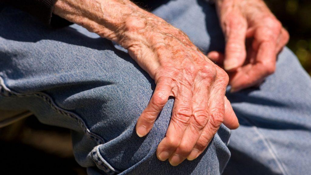 Clínica de artritis en Monterrey